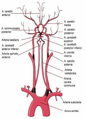 arteria basilaris stenose