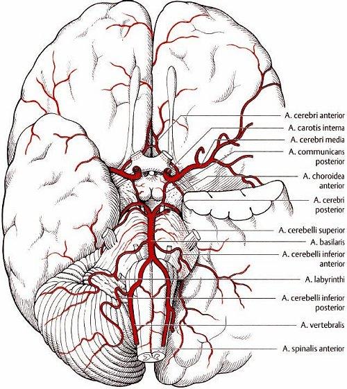 fibromuskuläre dysplasie arteria carotis
